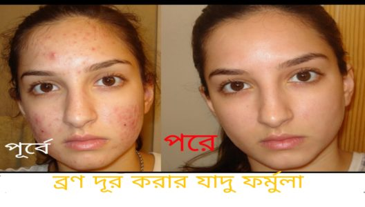 A magical way to remove pimples